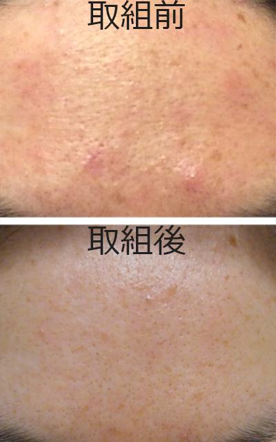 顔が汚い汚肌女…30年来の汚肌改善に本気で取り組んだ結果!