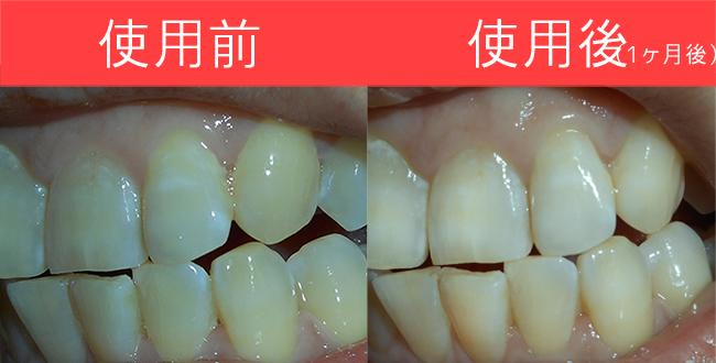 歯の黄ばみの取組みを検証