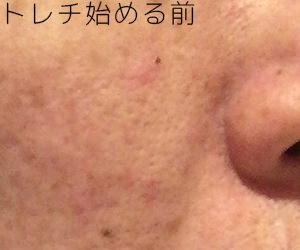 トレチノインハイドロキノン治療開始前の肌の状態