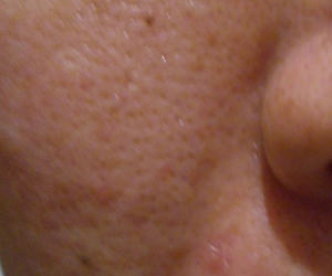 36日目汚肌のトレチ治療の様子