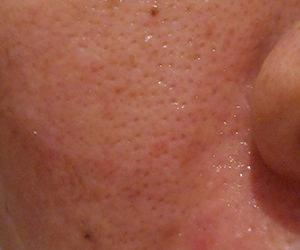 37日目汚肌のトレチ治療の様子