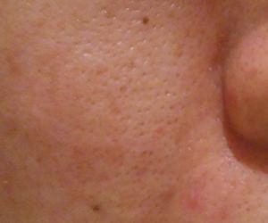 38日目汚肌のトレチ治療の様子