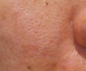 39日目汚肌のトレチ治療の様子