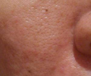 40日目汚肌のトレチ治療の様子