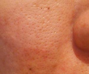 41日目汚肌のトレチ治療の様子