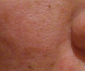 42日目汚肌のトレチ治療の様子