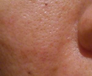 43日目汚肌のトレチ治療の様子