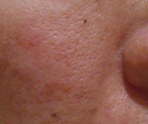 44日目汚肌のトレチ治療の様子