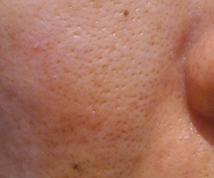 45日目汚肌のトレチ治療の様子
