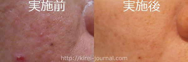 トレチ治療3クール赤味が出ない隔週トレチの比較画像ほほ