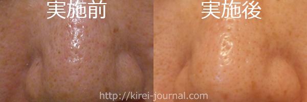 トレチ治療3クール赤味が出ない隔週トレチの比較画像 鼻