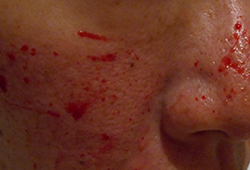 ダーマローラー(2.0mm)2回目出血があります