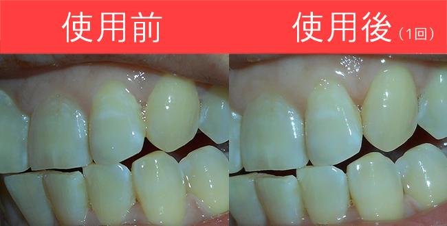 スマイルコスメティックの使用前後の歯の黄ばみを比較