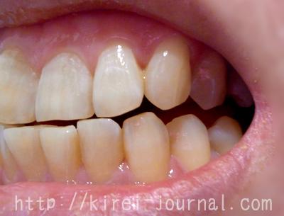 ブリリアントトゥースホワイトニングキット使用前の永久歯の着色汚れ