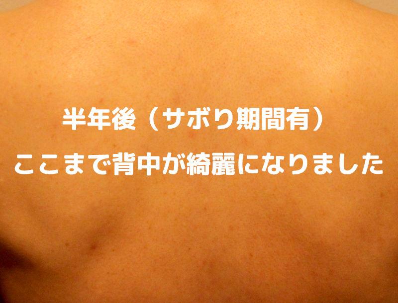 ニキビ用オパシー石鹸は嘘なしで高評価!背中のブツブツニキビが早く綺麗に直る