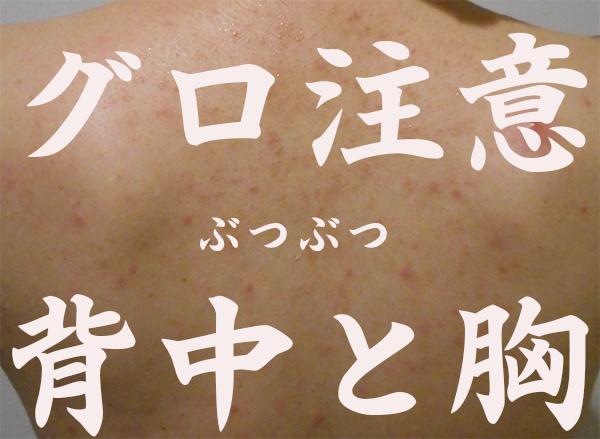 背中と胸の肌が汚い私がブツブツニキビを自分で1ヵ月で綺麗に治した方法!通院なし