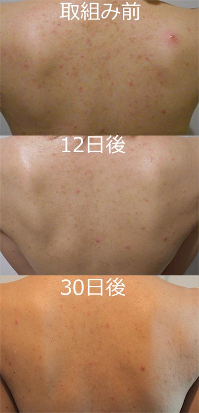 背中のブツブツ改善具合30日後比較